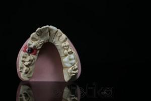 Диоксид циркония. Полная анатомия