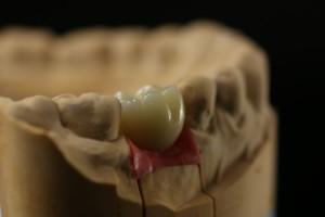 Металлокерамическая коронка на имплантате