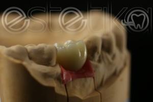 металлокерамическая коронка на имплантате Эстетика